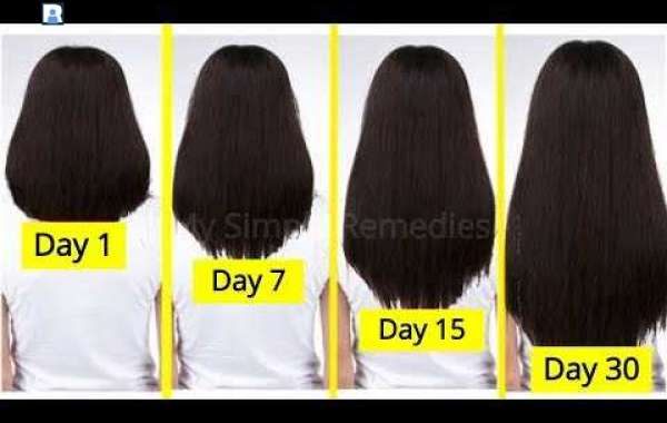 How to Speed Up Hair Growth